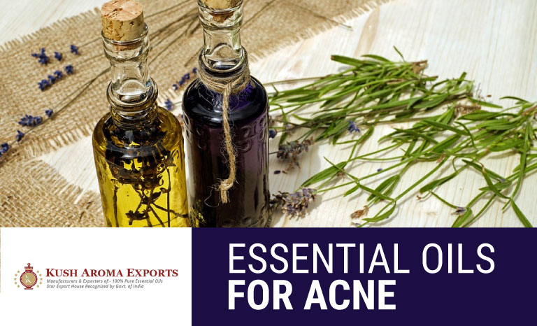 What are the Best Essential Oils for Acne Scars   Cystic Acne