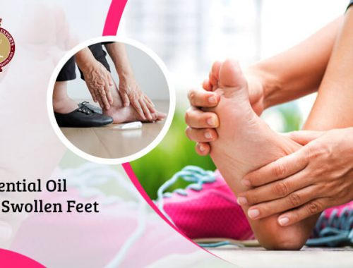 essential oils for swollen feet